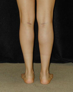 Patient # 38366 After Photo # 8