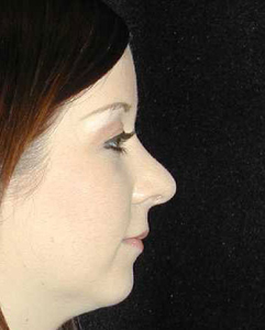 Nose Surgery Patient 15621 After Photo # 2