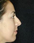 Nose Surgery Patient 53618