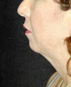 Chin Surgery Patient 60019