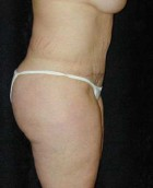 Tummy Tuck Patient 19073