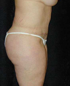 Tummy Tuck Patient 19073 After Photo # 2