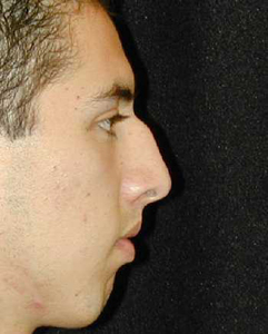 Nose Surgery Patient 54546 Before Photo # 1