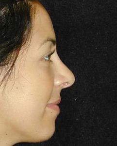 Nose Surgery Patient 53618 After Photo # 2
