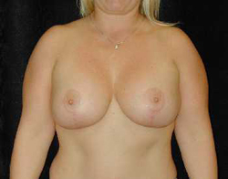 Breast Lift Patient 28658 After Photo # 2
