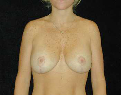 Breast Lift Patient 18549 After Photo # 2