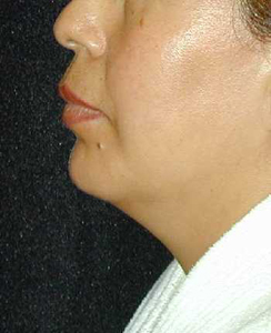 Chin Surgery Patient 16456 After Photo # 2