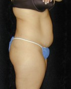 Tummy Tuck Patient 79254