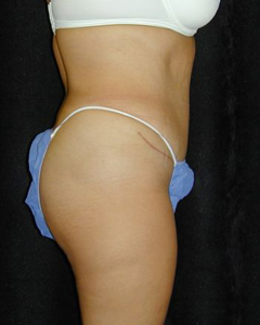 Tummy Tuck Patient 24053 After Photo # 2