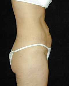 Tummy Tuck Patient 26565 Before Photo # 1