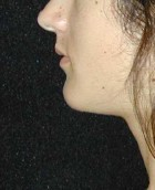 Chin Surgery Patient 92696