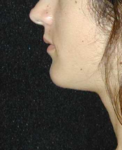 Chin Surgery Patient 92696 After Photo # 2