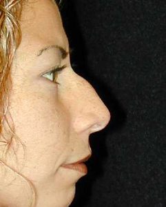 Nose Surgery Patient 99917 Before Photo # 1