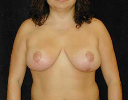 Breast Lift Patient 82471 After Photo # 2