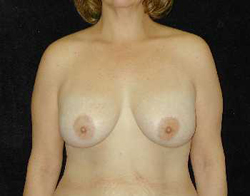 Breast Lift Patient 17890 After Photo # 2