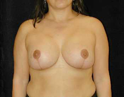 Breast Lift Patient 28449 After Photo # 2