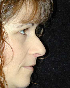 Nose Surgery Patient 63726 Before Photo # 1