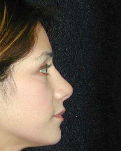 Nose Surgery Patient 86926 After Photo # 2
