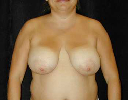 Breast Lift Patient 82471 Before Photo # 1
