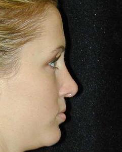 Nose Surgery Patient 99542 After Photo # 2
