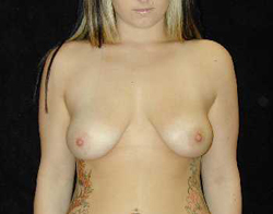 Breast Lift Patient 77606 Before Photo # 1