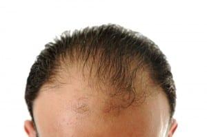 hair tranplant