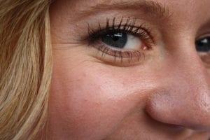 Acid to Fill Wrinkles