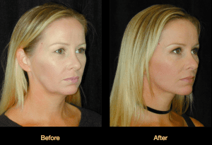 Dr. Ip Facelift Patient