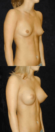 Ip Breast Augmentation Patient